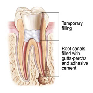 root tooth